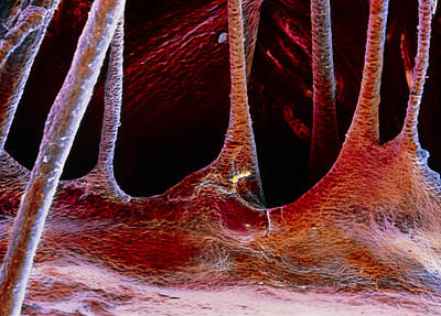 False-colour Sem Of A Portion Of A Cardiac Valve Print by Prof. P. Mottadept. Of Anatomyuniversity \la Sapienza\, Rome