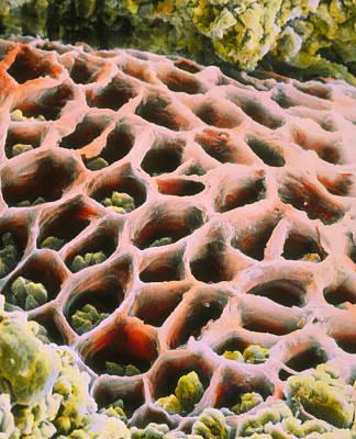 False-colour Sem Of Gastric Ulceration Print by Prof. P. Mottadept. Of Anatomyuniversity \la Sapienza\, Rome
