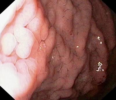 Gastritis Print by Gastrolab