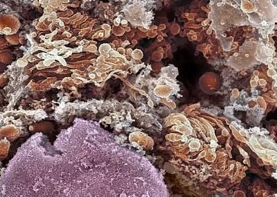 Golgi Apparatus, Sem Print by Dr David Furness, Keele University