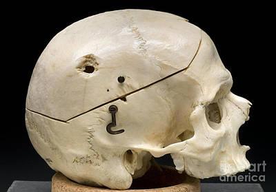 Sustain Photograph - Gunshot Trauma To Skull, 1950s by Science Source
