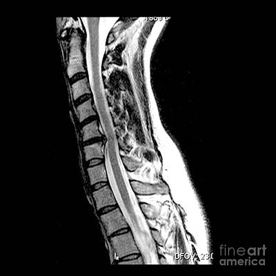 Extrusion Photograph - Herniated Disc In Cervical Spine by Medical Body Scans