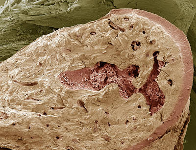 Interior Of A Bone, Sem Print by Steve Gschmeissner