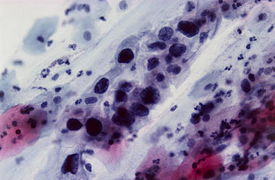 Lm Of Cervical Smear Showing Severe Dysplasia Print by Dr. E. Walker