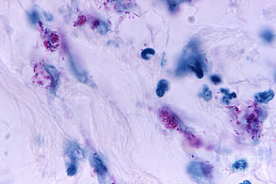 Mycobacterial Skin Infection Print by Science Source