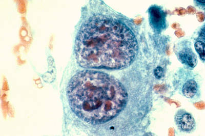Osteosarcoma Cells Print by Science Source