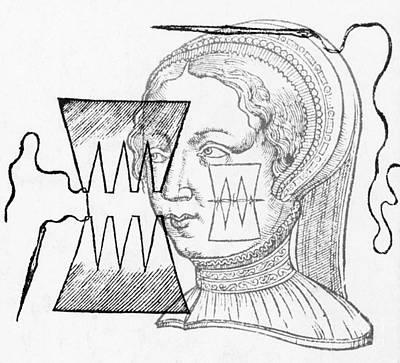 Par� Suture, 1500s Print by Science Source