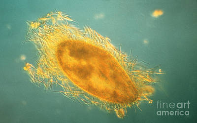 Paramecium With Ejected Trichocysts Print by Eric V Grave