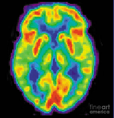 Pet Scan Of 80-year-old Brain, 2 Of 2 Print by Science Source