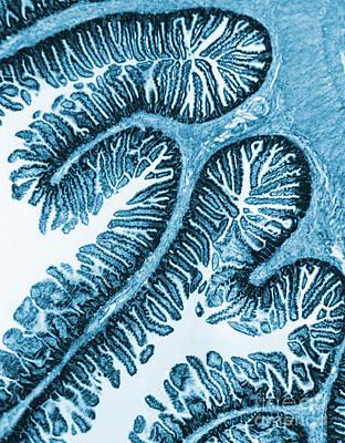 Tem Of Intestines Villi Print by Science Source
