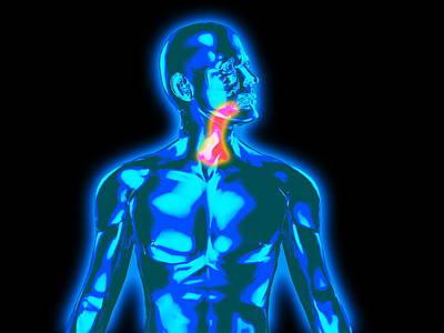 Throat Pain Print by Christian Darkin