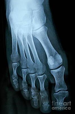 X-ray Image Of Mature Man's Feet Print by Sami Sarkis
