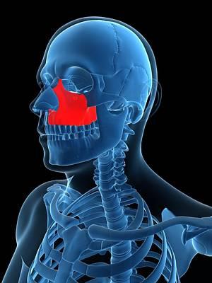 X-ray Image Digital Art - Zygomatic Bone, Artwork by Sciepro