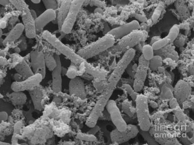 Apple Cider Vinegar Bacteria Print by Scimat