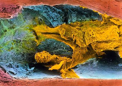 Colour Sem Of Atherosclerosis In Coronary Artery Print by Professor P.m. Motta, G. Macchiarelli, S.a Nottola