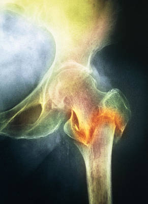 Coloured X-ray Of Femur Fracture In Osteoporosis Print by Medical Photo Nhs Lothian