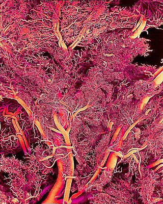 Blood Vessels, Sem Print by Susumu Nishinaga