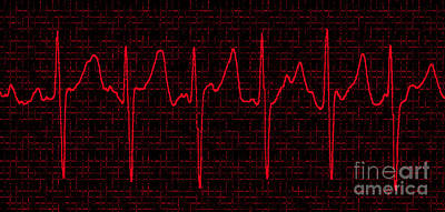 Heart Beat Photograph - Atrial Fibrillation by Science Source