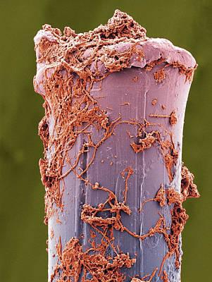 Used Toothbrush Bristle, Sem Print by Steve Gschmeissner