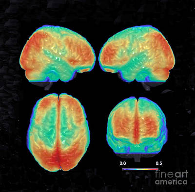 Bipolar Photograph - Bipolar Brain, 3d Mri Scan by Science Source