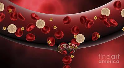 Blood Clotting Inside Artery Print by Stocktrek Images