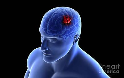Human Brain Digital Art - Conceptual Image Of A Tumor In Human by Stocktrek Images