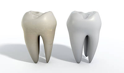 Comparison Digital Art - Dirty Clean Tooth Comparison by Allan Swart