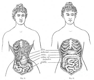 Medical Crimes Of The Corset, 1908 Print by Wellcome Images