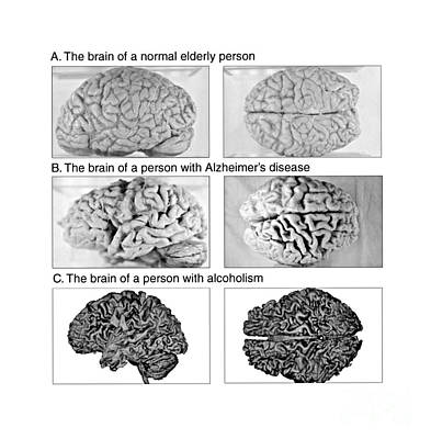 Anatomic Photograph - Normal, Alzheimer And Alcoholic Brain by Science Source