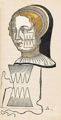 Pare Suture, 1500s Print by Wellcome Images