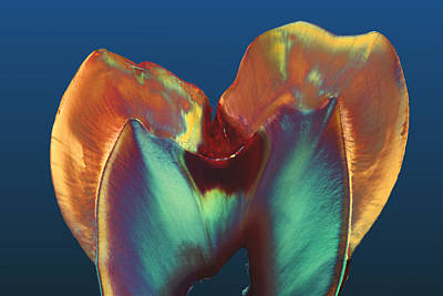 Light Micrograph Photograph - Polarised Lm Of A Molar Tooth Showing Decay by Volker Steger