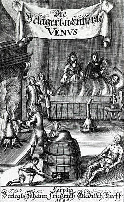 Treatments For Syphilis, 17th Century Print by Science Source
