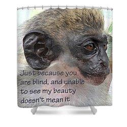 Blind Beauty Shower Curtain by Ian  MacDonald