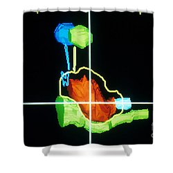 Proton Beam From Brain During Ct Scan Shower Curtain by Science Source