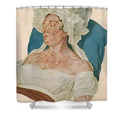 Scarlet Fever Shower Curtain by Science Source