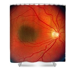 Nevus In The Retina Shower Curtain by Science Source