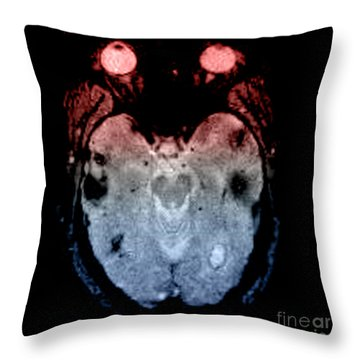 Mri Of Amyloid Angiopathy Throw Pillow by Living Art Enterprises