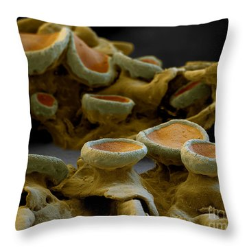 Common Orange Lichen Throw Pillow by Eye of Science