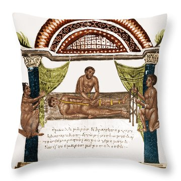 Throw Pillow featuring the photograph Joint Dislocation Treatment, 1st by Science Source