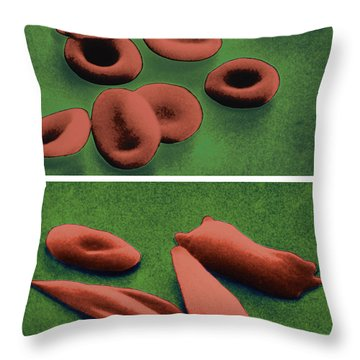 Normal And Sickle Red Blood Cells Throw Pillow by Omikron
