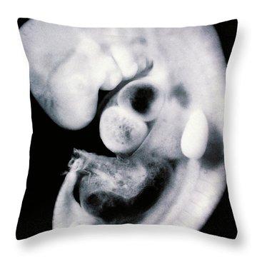 Human Embryo Throw Pillow by Omikron