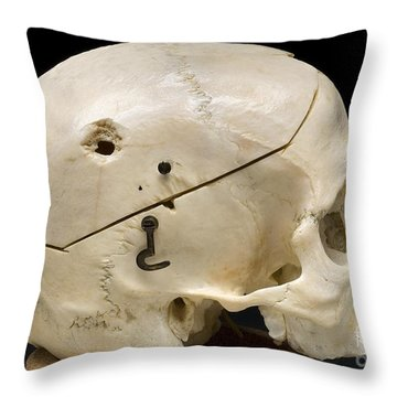Gunshot Trauma To Skull, 1950s Throw Pillow by Science Source