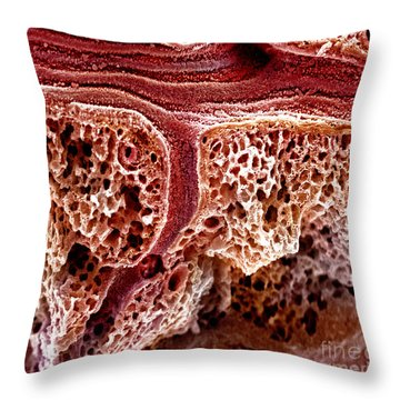 Mouse Lung, Sem Throw Pillow by Science Source