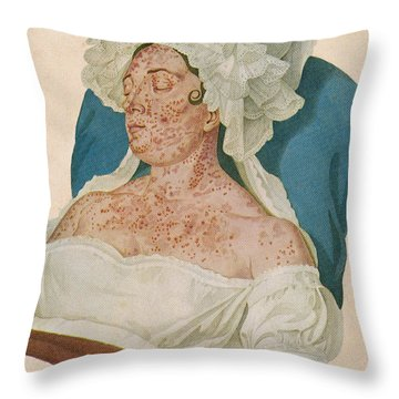 Scarlet Fever Throw Pillow by Science Source