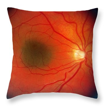 Nevus In The Retina Throw Pillow by Science Source
