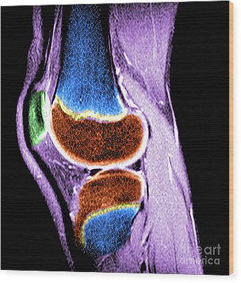 Childs Knee Wood Print by Medical Body Scans