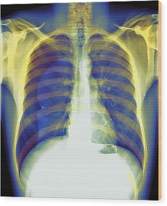 Pneumothorax, X-ray Wood Print by Du Cane Medical Imaging Ltd