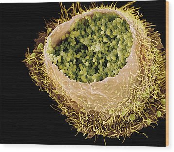 Chlamydia Infection, Sem Wood Print by