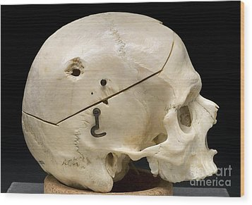 Gunshot Trauma To Skull, 1950s Wood Print by Science Source
