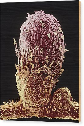 Root Nodule Of Pea Plant Wood Print by Dr Jeremy Burgess